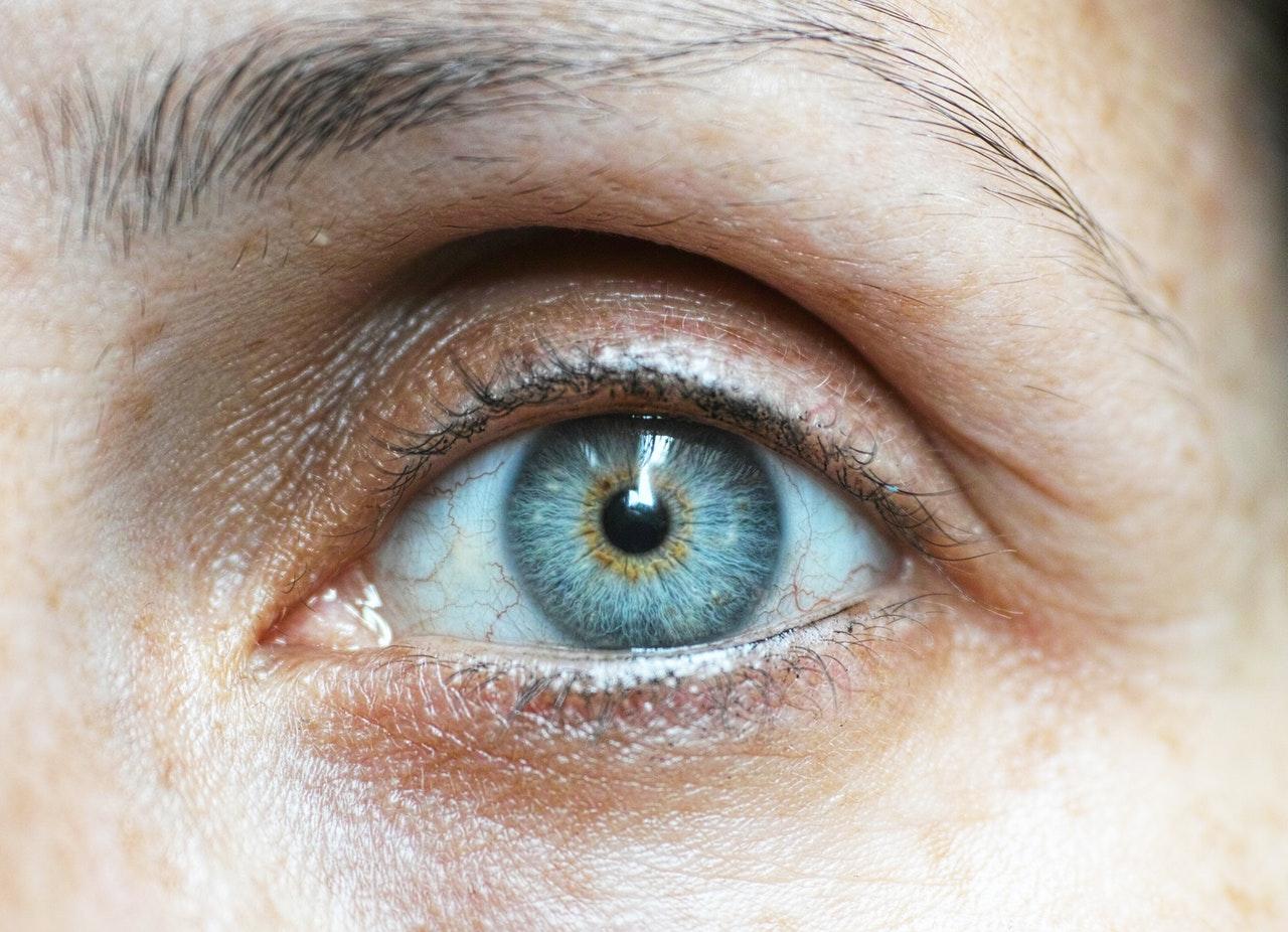 Métodos para combatir las ojeras de manera eficaz